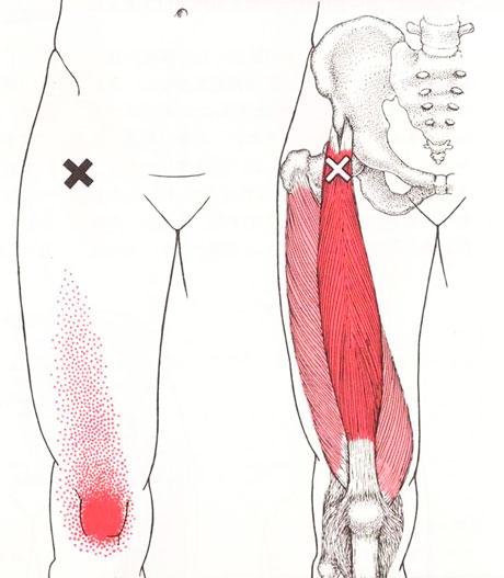 大腿四頭筋のトリガーポイント