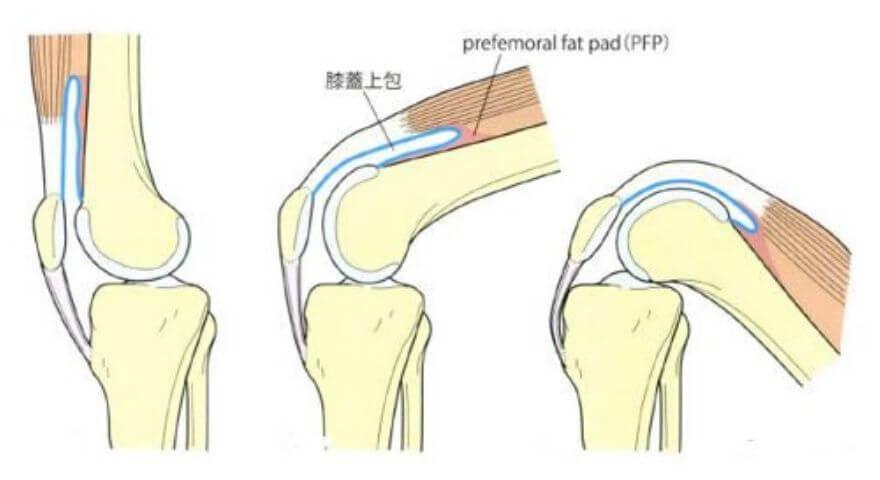 膝蓋上嚢の動き