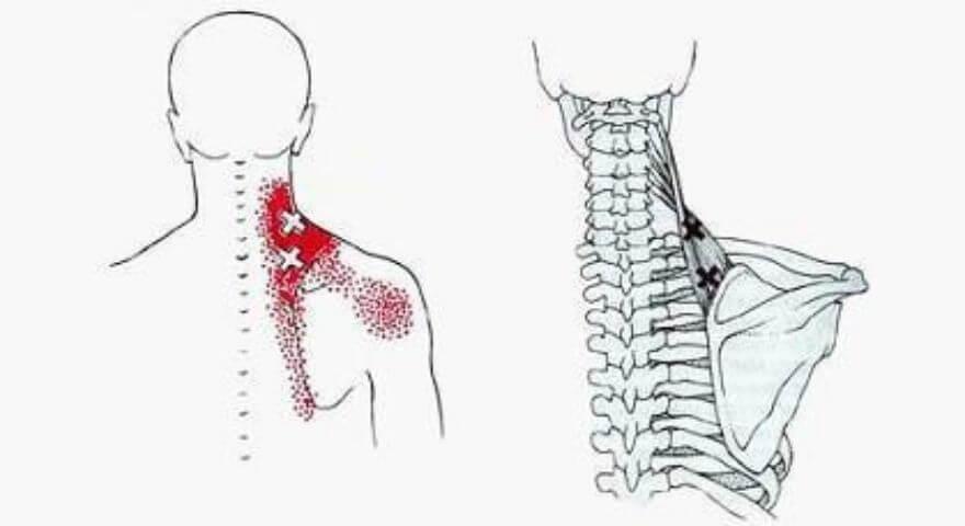 肩甲挙筋のトリガーポイント